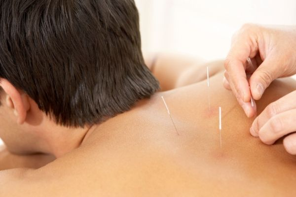acupuncture-northern-beaches-1