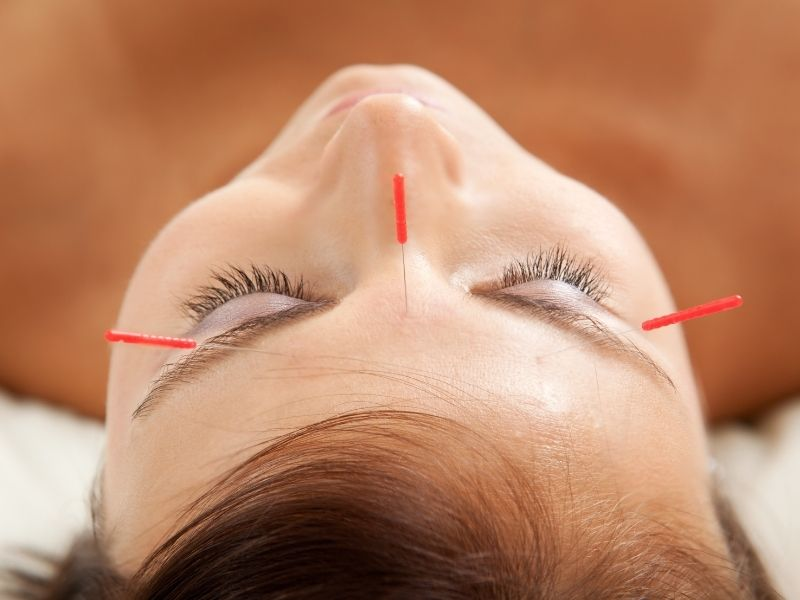anti-ageing-cosmetic-acupuncture